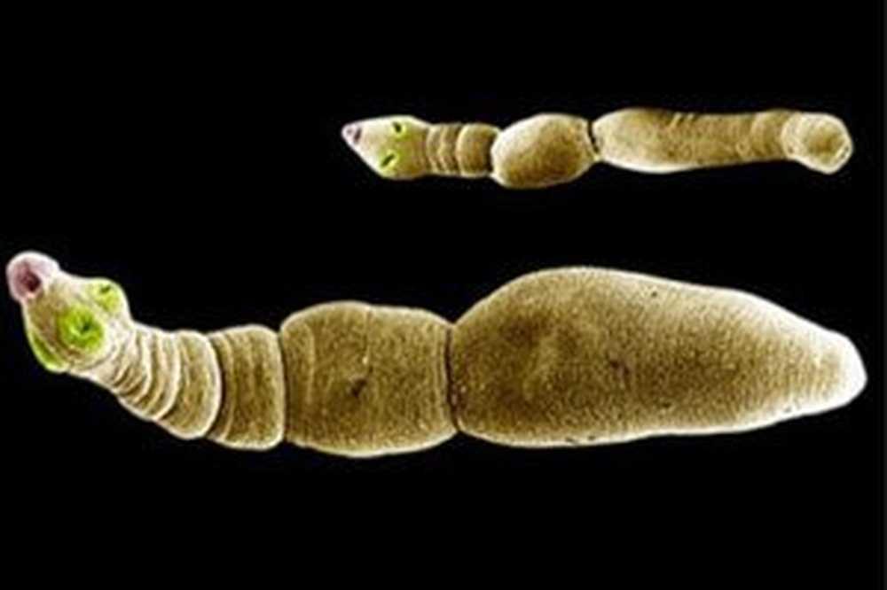 Paraziti u jetri. Paraziti u jetri simptomi. Vitamin B12 in limfom, Parazit na jetri