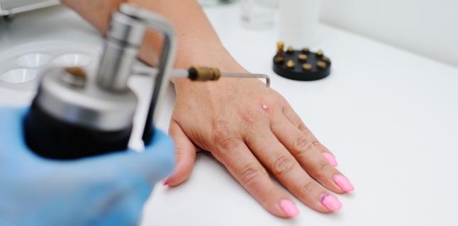 simptome și tratamente ale verucilor genitale cancer colon jovenes