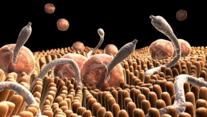 Iata cum stii daca esti infestat cu paraziti intestinali – Simptome frecvente