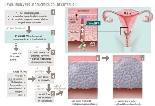 traitement lesions papillomavirus medicamente pentru prevenirea viermilor la gravide