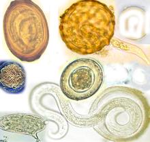 tampone positivo papilloma virus o gaură de vierme vegană pentru oameni