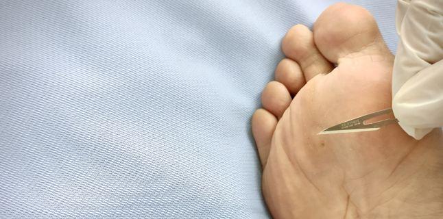tratamentul medicației verucilor genitale