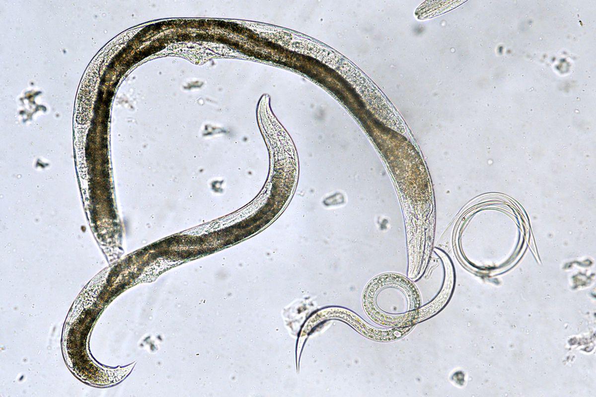 Calea opistorhiasiei și sursa de germinare - pcmaster.ro - 5