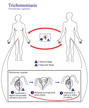trichomoniasis condilom