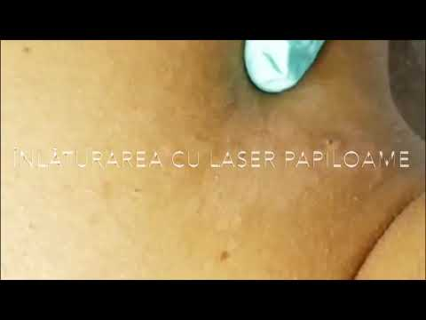 intraductal papilloma prognosis giardiaza lovaciei