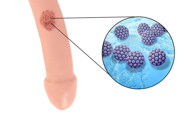 Virus hpv sintomi nell uomo. Hpv sintomi negli uomini