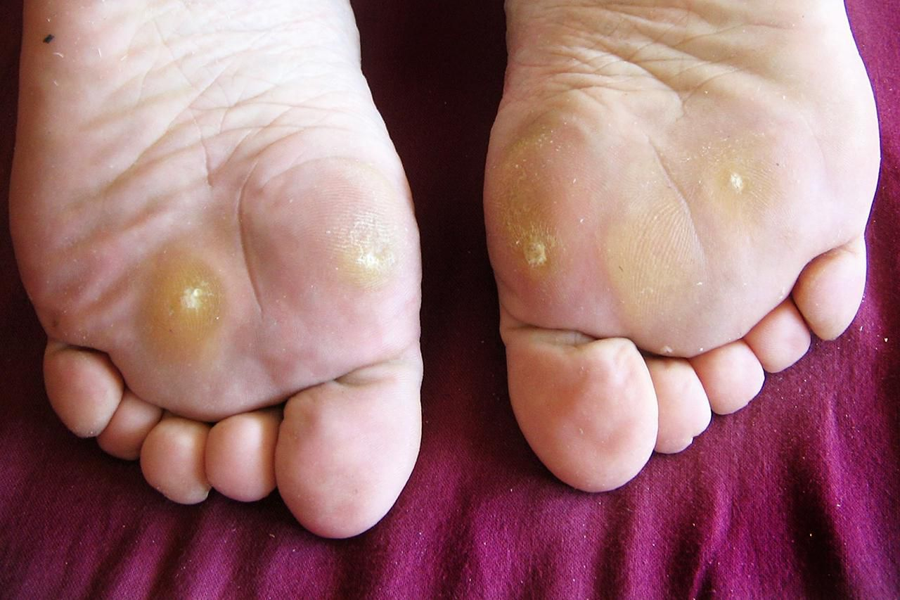 wart on foot yellow