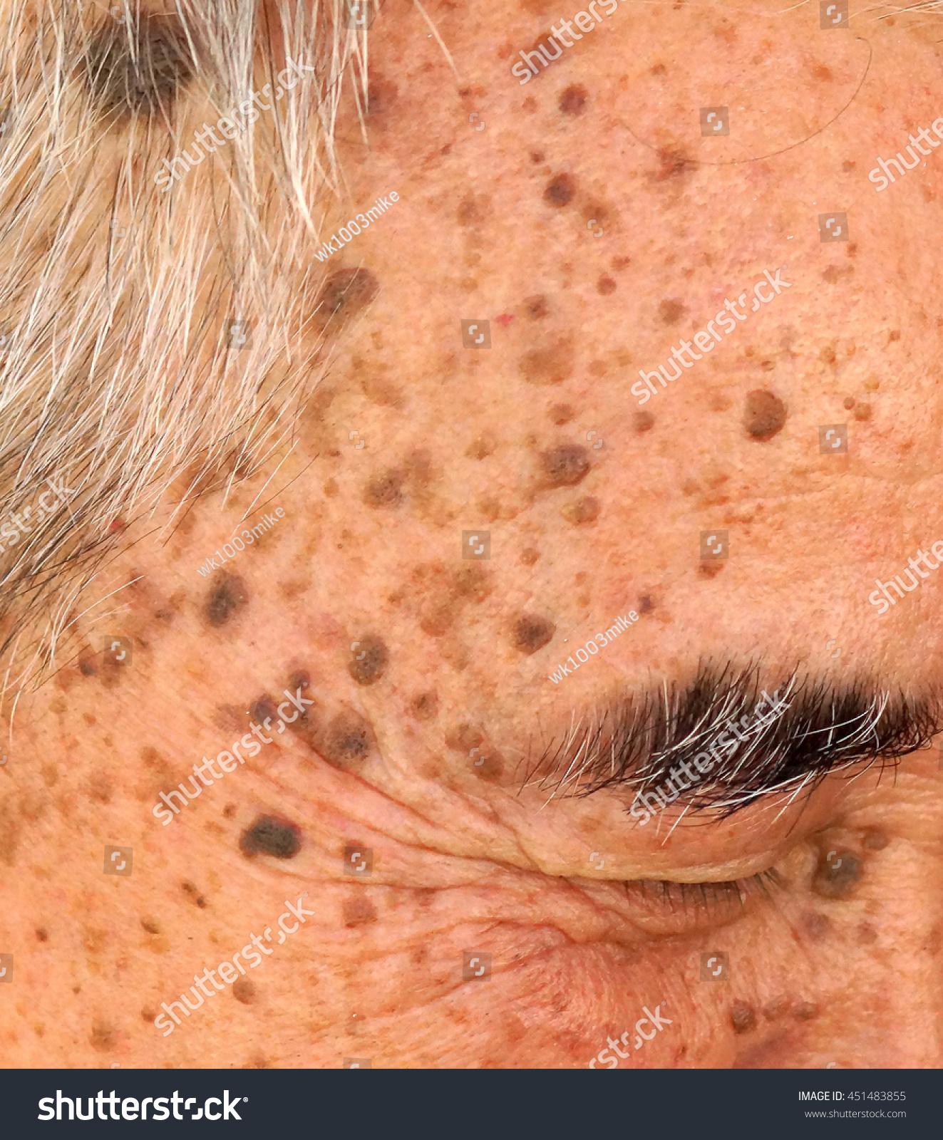 warts on old skin)