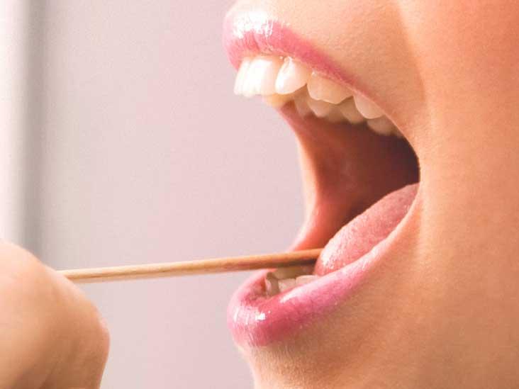 pcmaster.ro Genital warts on tongue removal, Removing papilloma from tongue