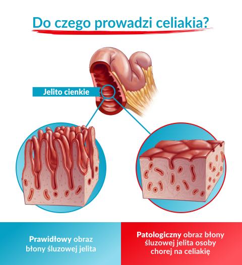 anemie jak leczyc hpv e tumore alla gola