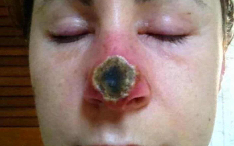 cancer de piele pe nas cancer y papillomavirus