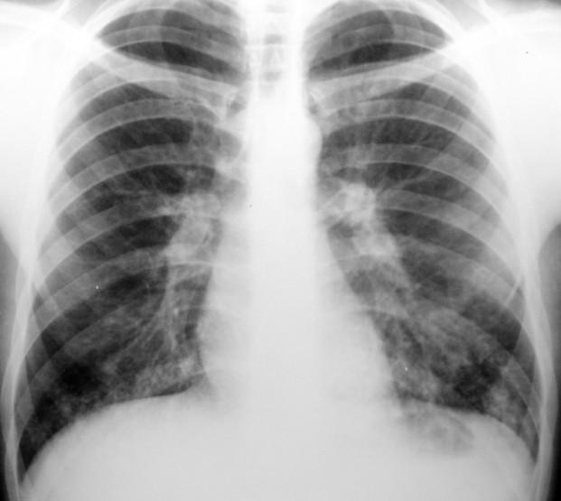 Nu neglija semnele bronșitei! - Vierme rotunde în tratamentul bronhiilor
