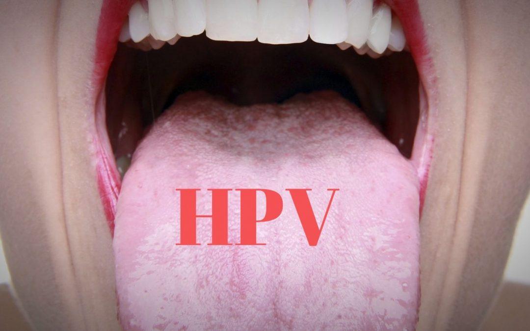 sintomi papilloma in bocca