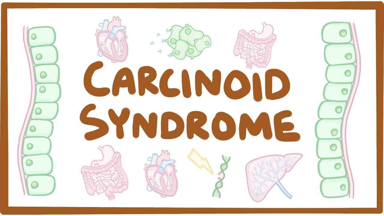 Neuroendocrine cancer usmle -