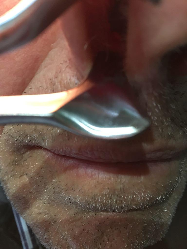 papilloma squamoso definizione tratamiento para oxiuros
