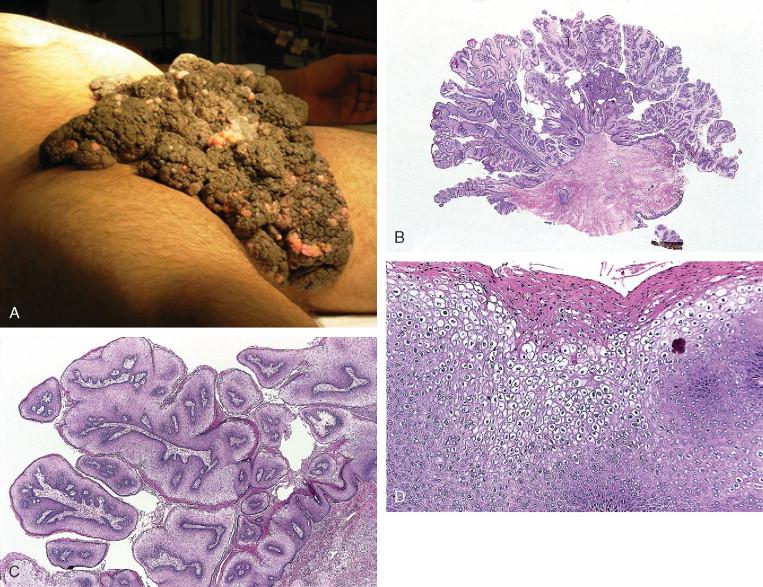 condilomul afectează potența Cum se tratează HPV la femei?