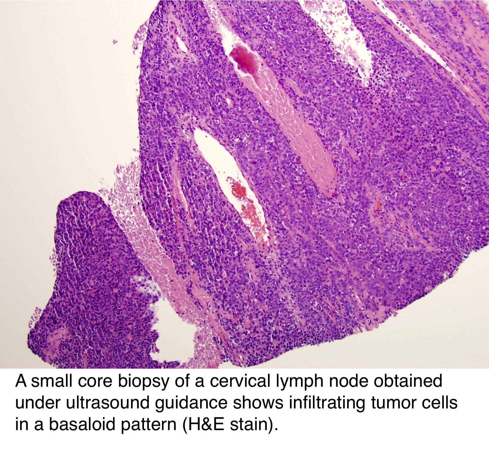 hpv associated oropharyngeal cancer pathology outlines cele mai eficiente medicamente antiparazitare pentru oameni