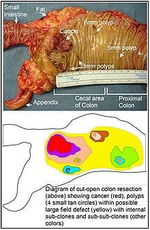 cancer la colon diagnostic cum să elimini negii de pe buze