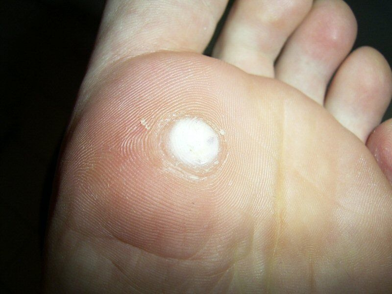 Foot wart removal recovery time.