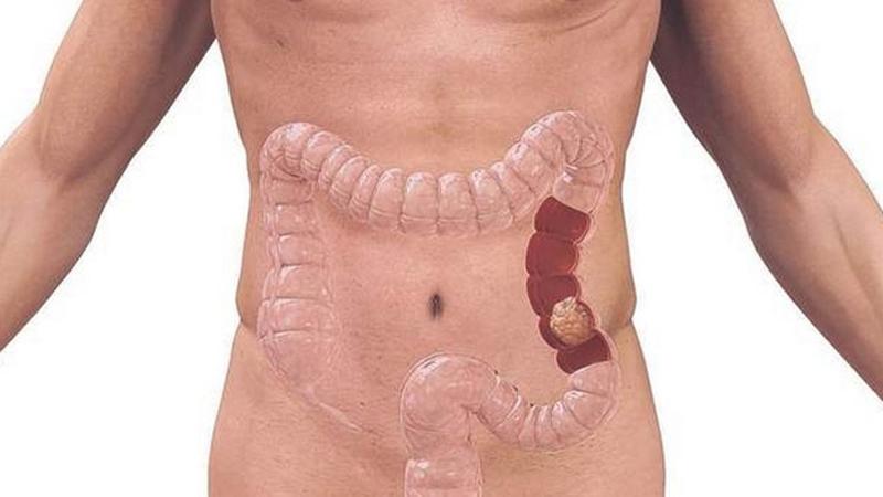 Cancer de colon drept