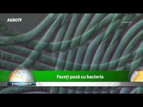 enterobius vermicularis treatment nz