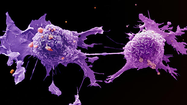 aggressive cancer growth rate