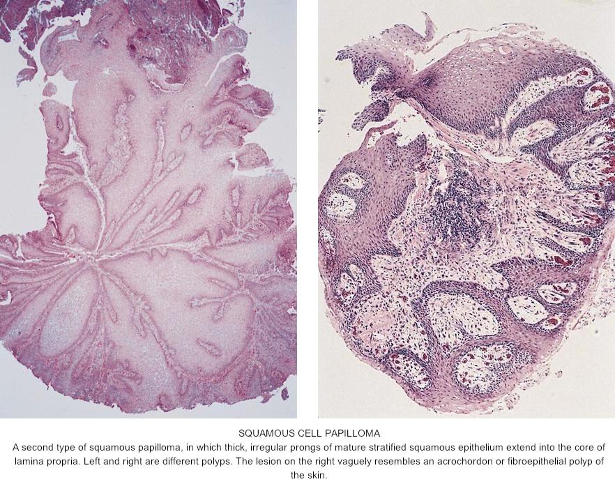 lingual papilloma pathology
