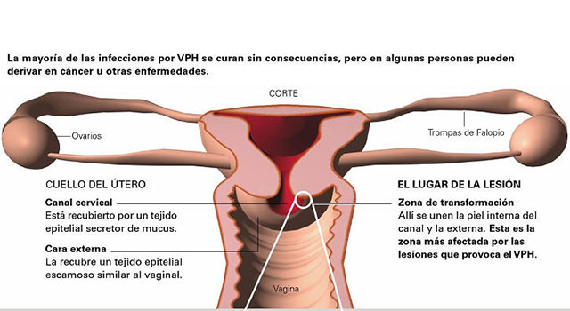 papiloma virus embarazo
