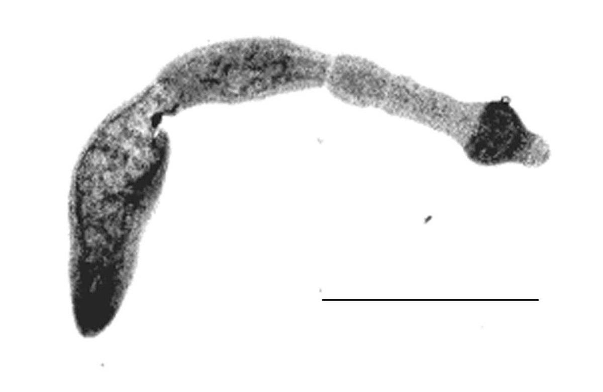 de ce este tapeworm? papilomatosis bovina tipos