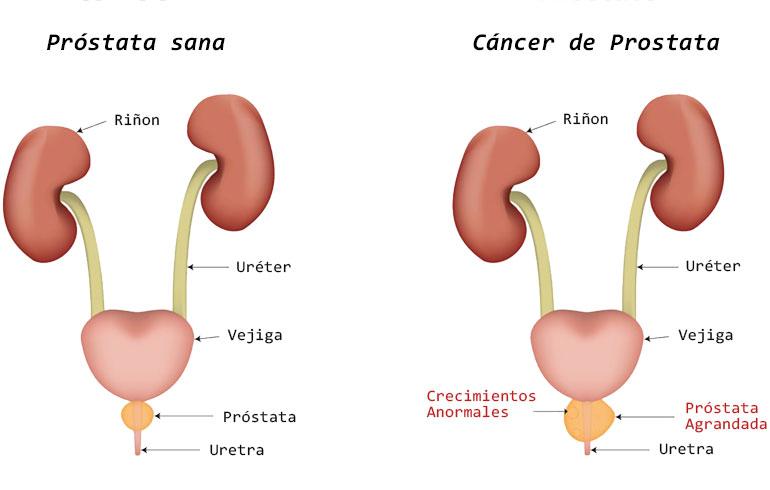 cancer de prostata avancado sintomas