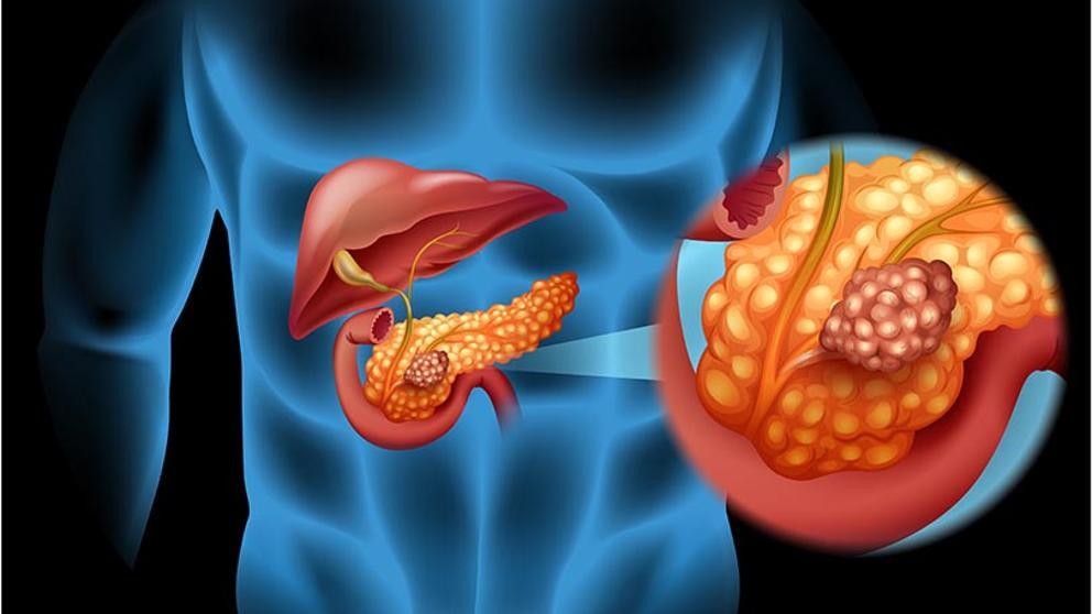 cancerul pancreatic la diabetici plathelminthes faringelui
