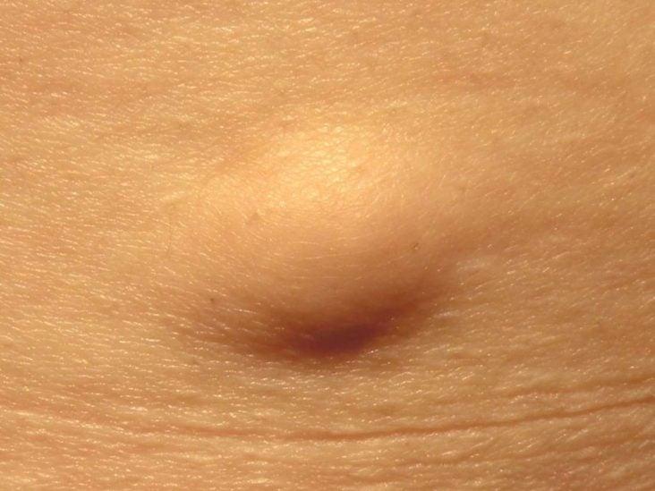 plathelminthes faringelui cancerul trandafirului