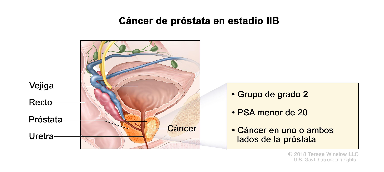Cancer peritoneal fase 4. Cancer peritoneal fase 4