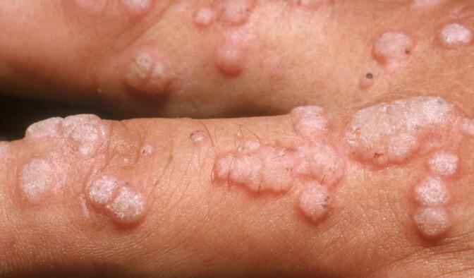 Hpv wart vs herpes. Fascioliasis dia