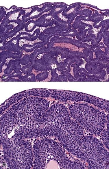 inverted papilloma bladder ck20 simptomele vezicii biliare
