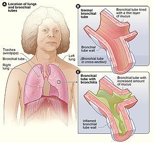cancer bronhii simptome