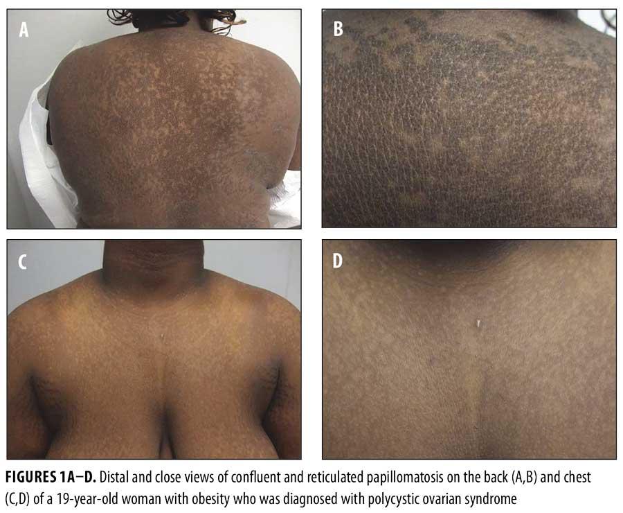 Căderea părului papillomas Papillomas fronds, Skin papilloma definition