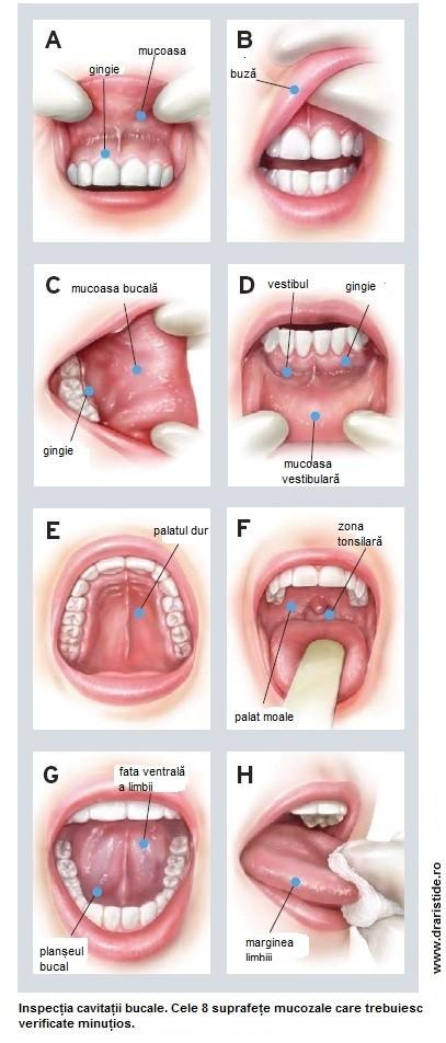cancerul bucal tratament