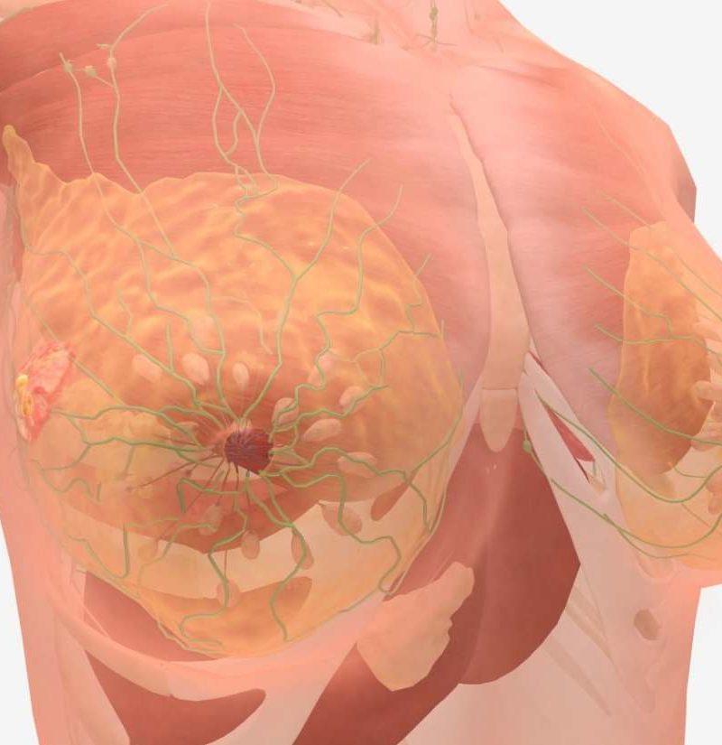 Aggressive cancer in humans Prostate albastru tratament intestinal