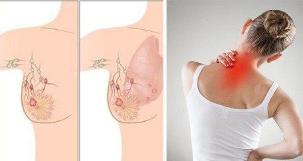 Cancerul de san – simptome, factori de risc, diagnostic si solutii de tratament