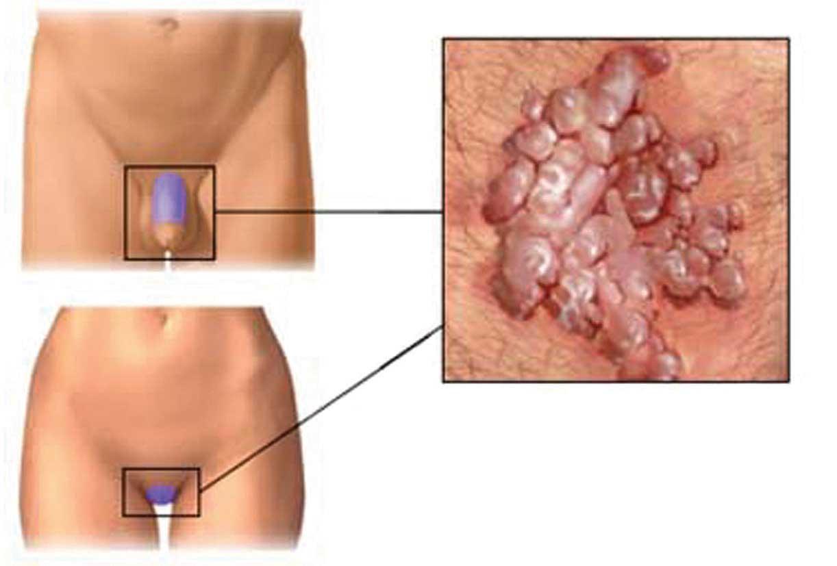 papilloma cancro gola pastile pentru toate tipurile de paraziți umani