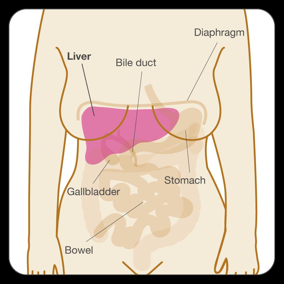 Oxiuri ciclu de viata - Virus del papiloma humano sintomas como se contagia