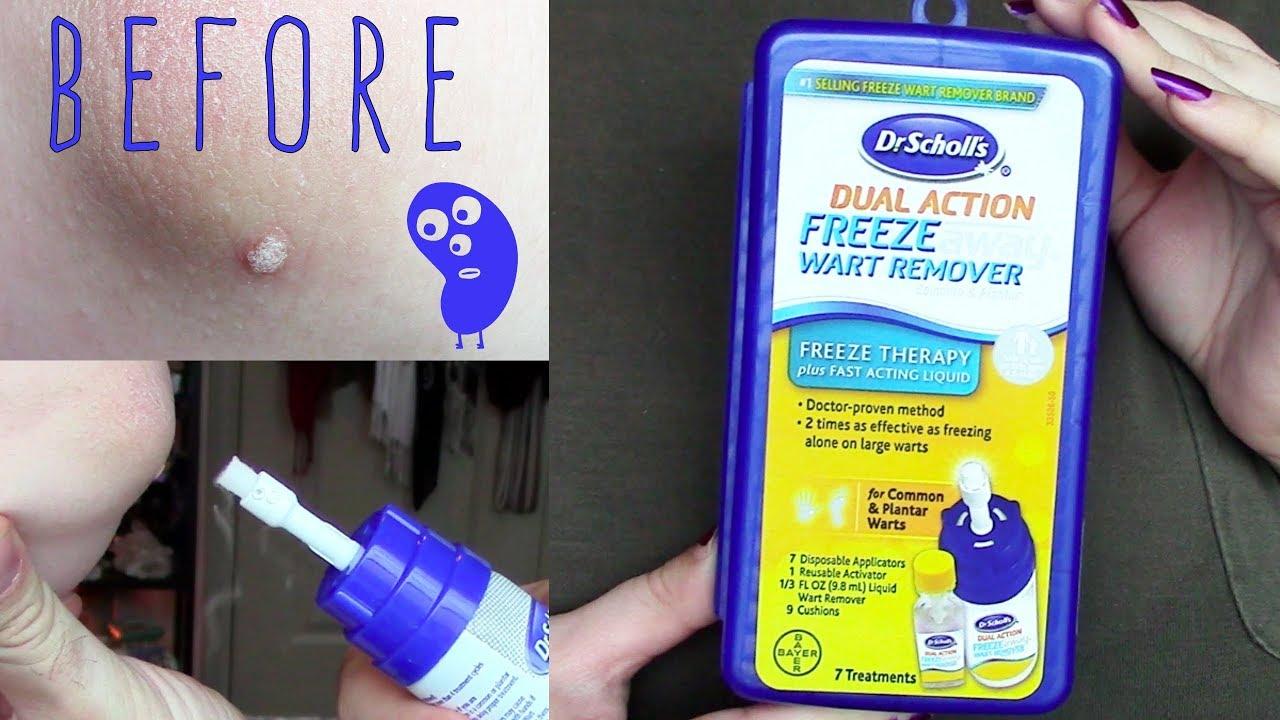 wart treatment kit tratamentul cu unguent al verucilor genitale
