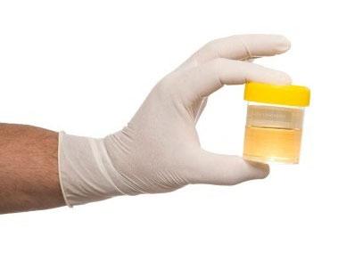esami urine papilloma virus giardiază în apă cu godeu