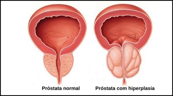 neuroendocrine cancer appendix îndepărtarea verucilor genitale cât vindecă