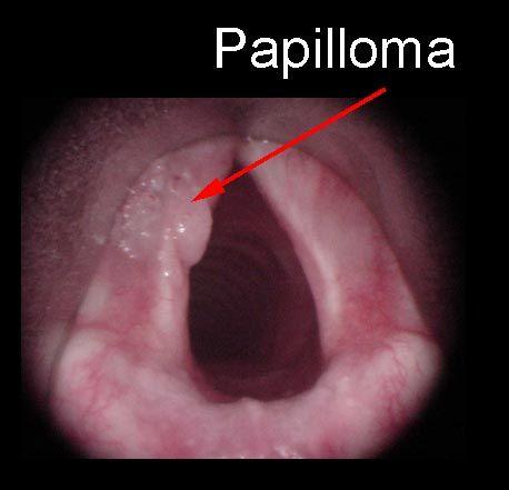Hpv laryngeal papillomatosis