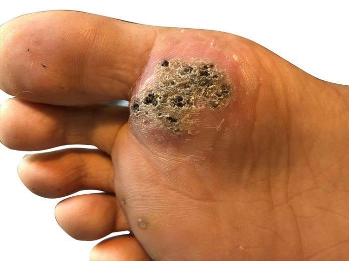 warts foot problems viermi viermi de roată