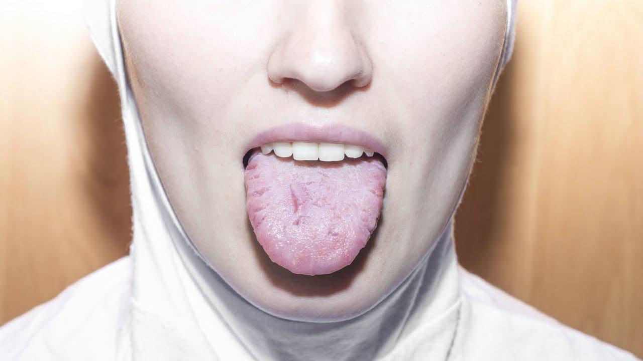 cancer de gura simptome