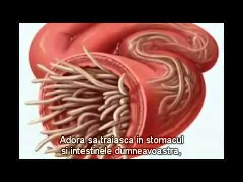 paraziți în medicina corpului uman