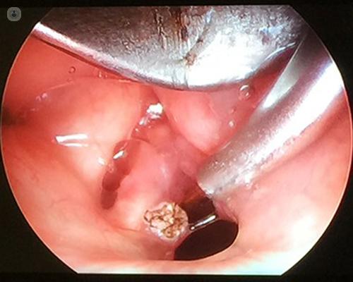 tracheal papillomatosis treatment